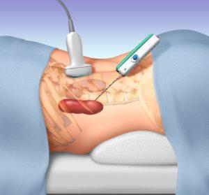 Procedura biopsji