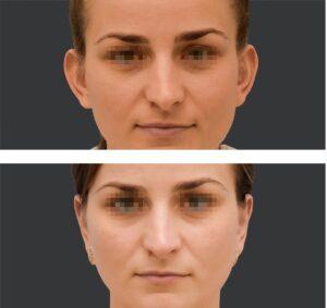 Plastyka odstających uszu efekty
