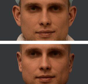 Plastyka odstających uszu efekty 2