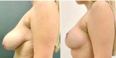 Podniesienie-piersi-2